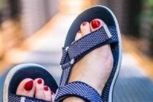 RESOLVING BUNIONS WITH A BUNIONECTOMY