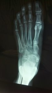 What is a Foot Fracture?